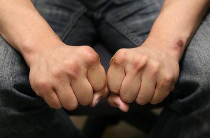 チャンピオンの拳